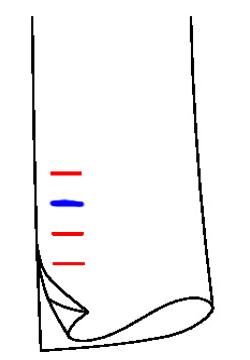 0922 - Zweites Knopfloch farbig