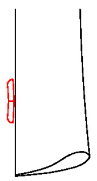 6623 - 1 Großer Knopf